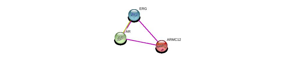 http://string-db.org/version_10/api/image/networkList?limit=0&targetmode=proteins&caller_identity=gene_cards&network_flavor=evidence&identifiers=9606.ENSP00000288065%0d%0a9606.ENSP00000381891%0d%0a9606.ENSP00000363822%0d%0a