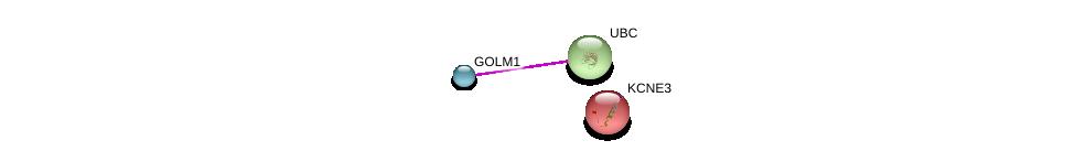 http://string-db.org/version_10/api/image/networkList?limit=0&targetmode=proteins&caller_identity=gene_cards&network_flavor=evidence&identifiers=9606.ENSP00000373363%0d%0a9606.ENSP00000344818%0d%0a9606.ENSP00000310557%0d%0a