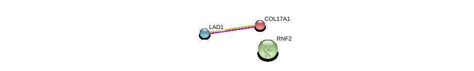 http://string-db.org/version_10/api/image/networkList?limit=0&targetmode=proteins&caller_identity=gene_cards&network_flavor=evidence&identifiers=9606.ENSP00000375829%0d%0a9606.ENSP00000340937%0d%0a9606.ENSP00000356480%0d%0a